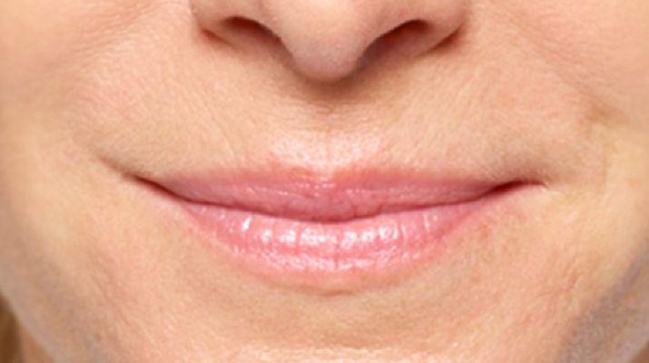 แบบฝึกหัดสำหรับมุมของริมฝีปาก
