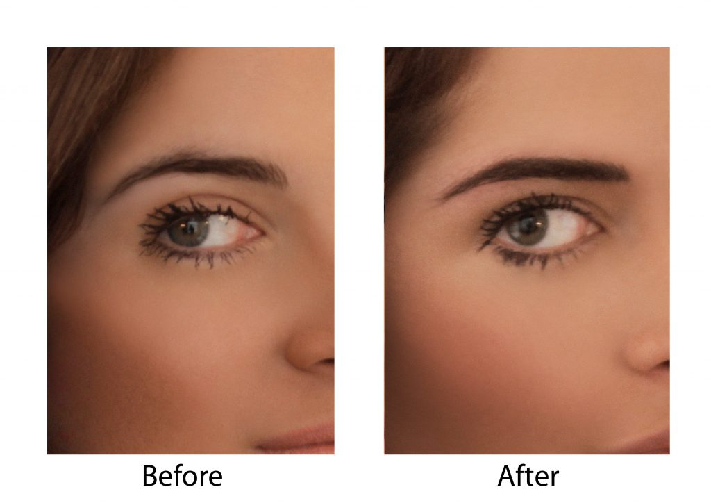 Thinning Outer Eyebrows