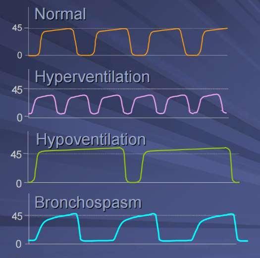 Waveform Capnography Trend
