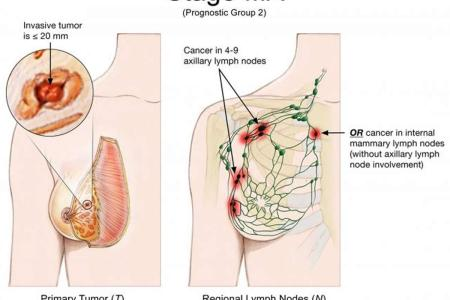 Interior Internal Mammary Nodes Full Hd Maps Locations Another