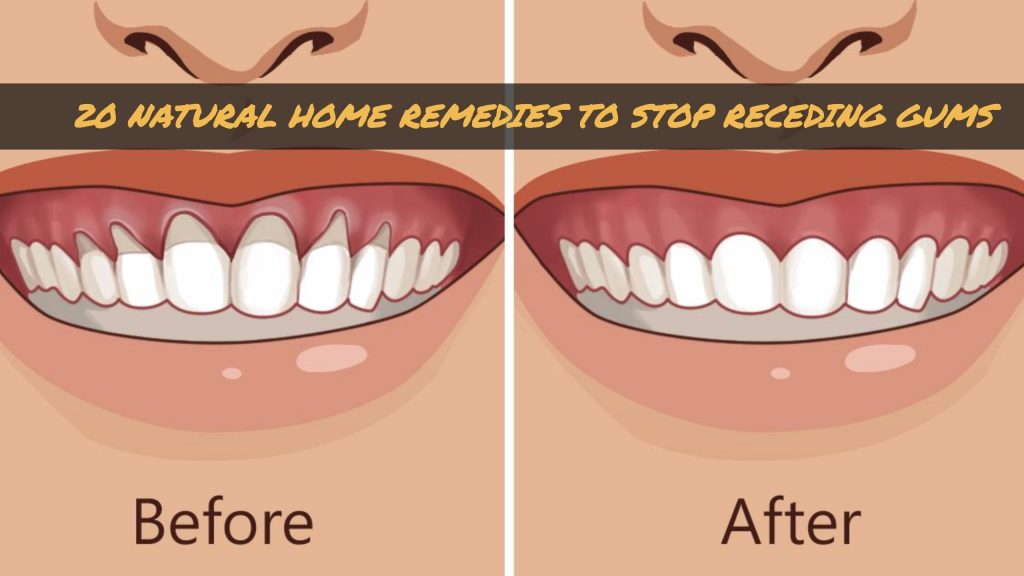 20 Natural Home Remedies To Stop Receding Gums