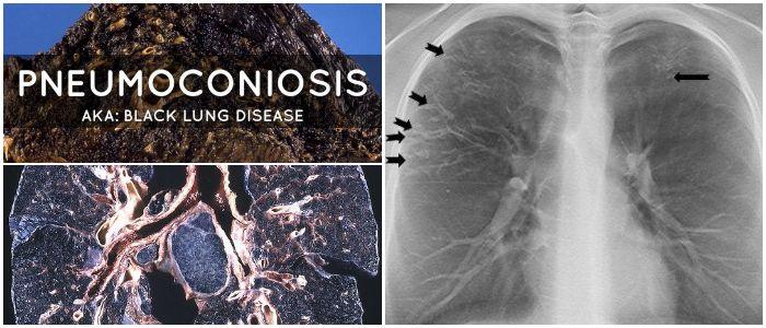 Pneumoconiosis Description Categorization Causes Tests