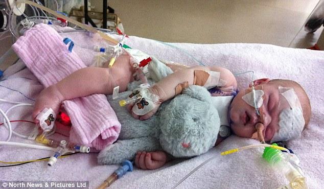 After Heart Surgery Babies
