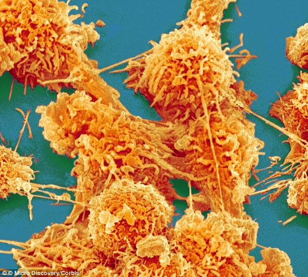 Human X Rays Kill Cells