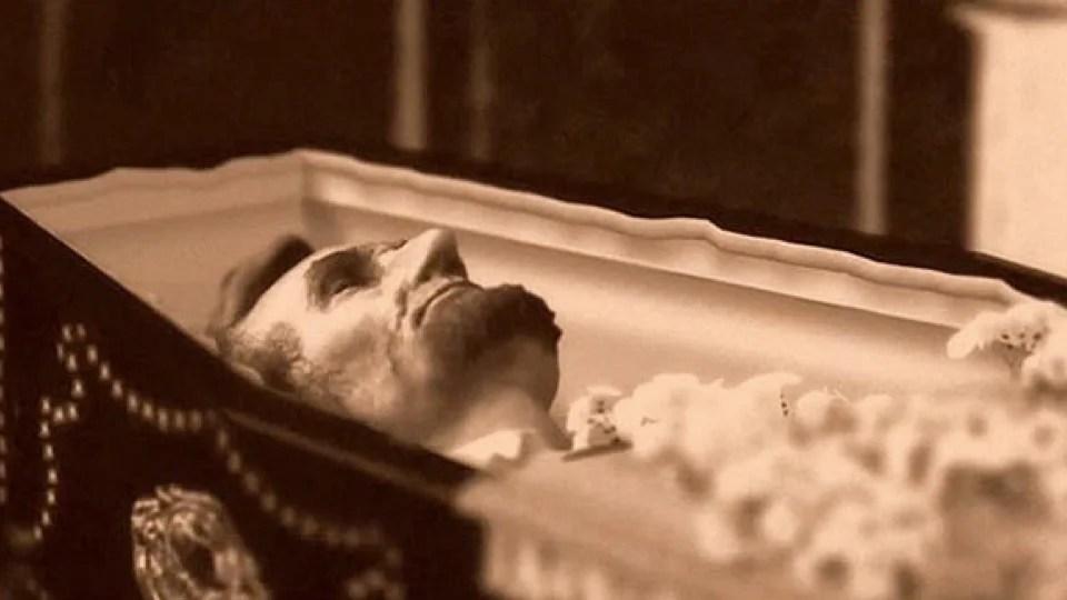 Live Embalming Procedures