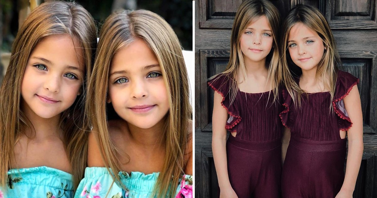 These Twins From California Are Dubbed As The 'Most ...