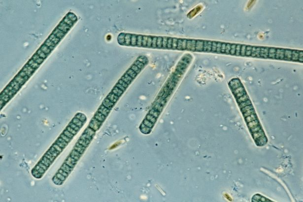 Toxic algae may cause dementia as scientists find higher ...