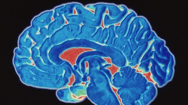 Professor's 'brain soup' experiment shows cognitive power ...