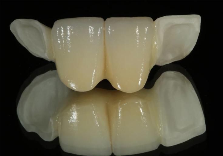 Dental Maryland Work Bridge