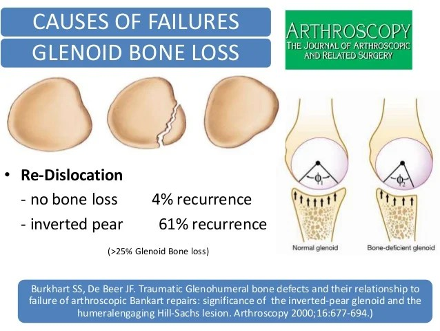 Arthroscopic Shoulder Surgery Dislocation