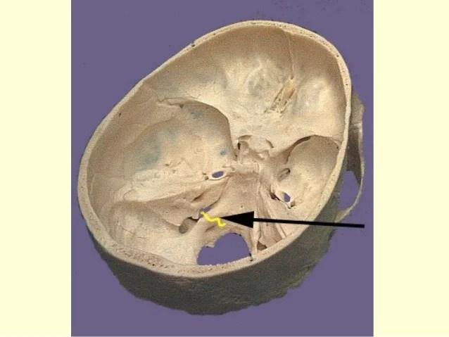 Imaging Nerve Recurrent Laryngeal Ultrasound