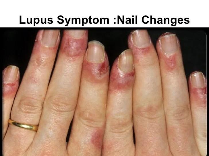Discoid Lupus Rash Hands