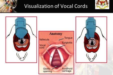 Vocal Cords Intubation 4k Pictures 4k Pictures Full Hq Wallpaper