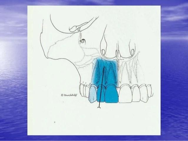 Index Finger Nerve Block