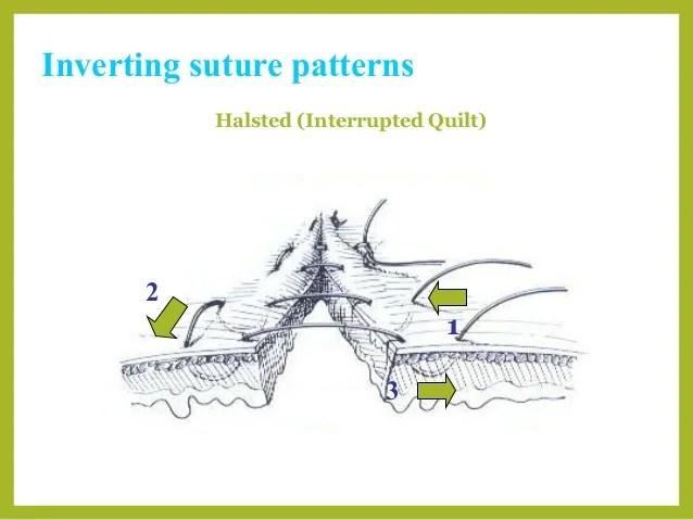 Suture Types Veterinary