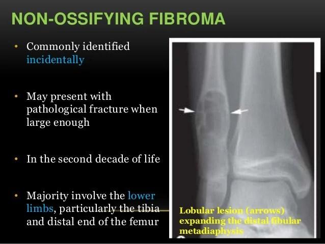 Tibia Metadiaphyseal Fracture