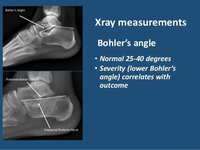 Foot Angle Measurements