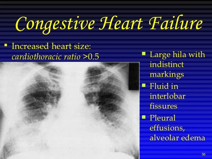 X Rays Taken Congestive Heart Failure