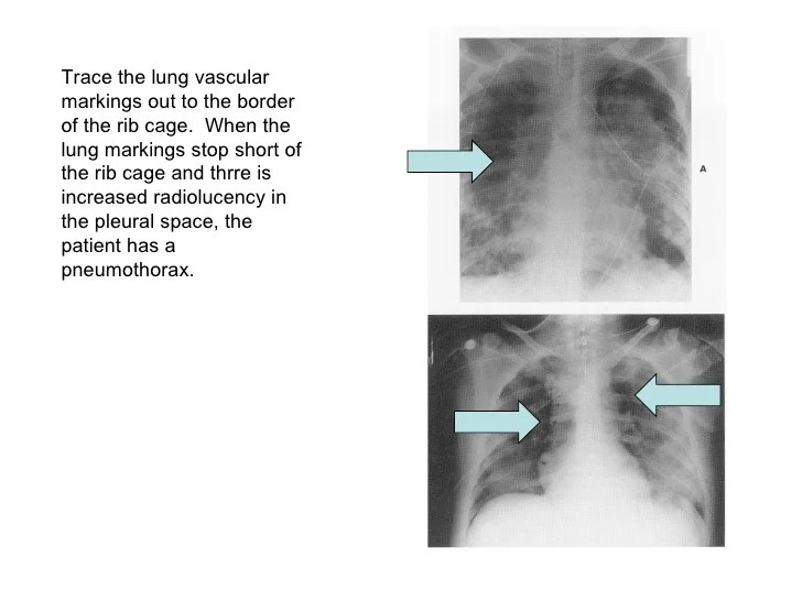 Vascular Markings Pulmonary What Are