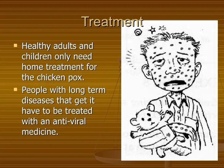 Famous People Chickenpox