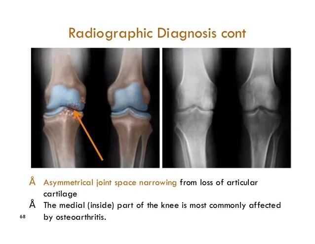 X Findings Ray Spine Osteoarthritis