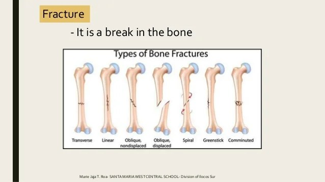 Types Of Bone Fractures Worksheet