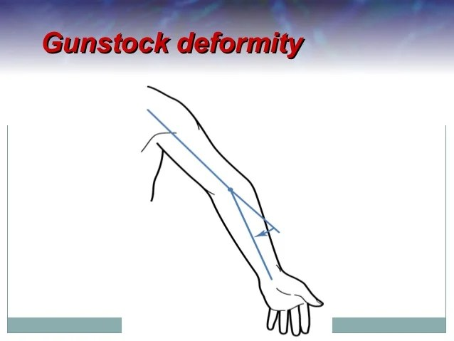 Chronic Bursitis Elbow