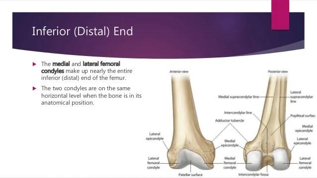 Intertrochanteric Femur Fracture Anatomy