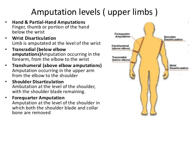 Arm Amputation Shoulder