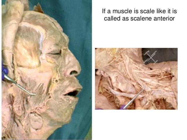 Scalene Muscles Cadaver