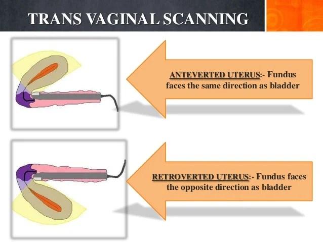 Appearance Cervix Normal