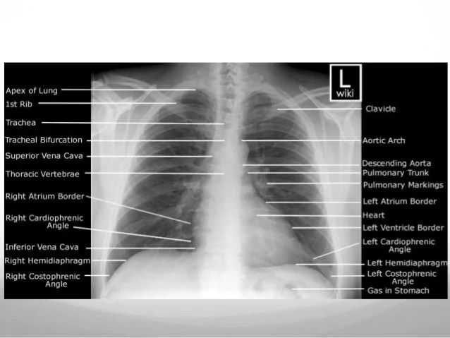 Right Lobe Lung X Ray Rotation Images