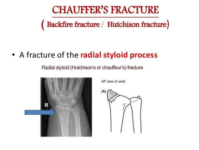 1st Metacarpal Base Fracture