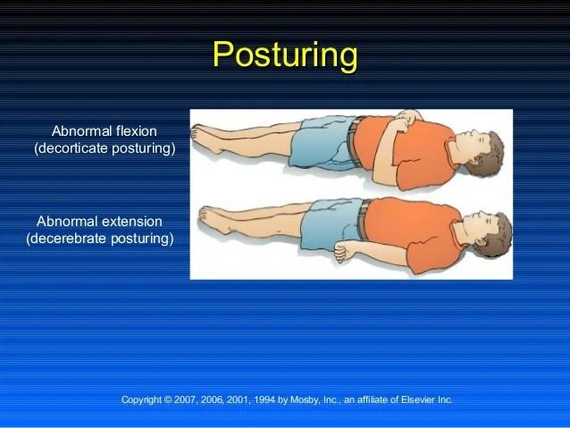 Abnormal Flexion Posturing