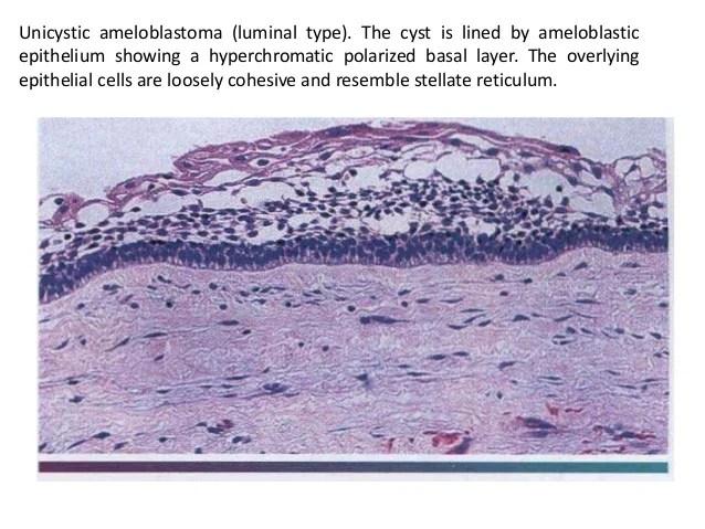 Odontogenic tumors dina patho