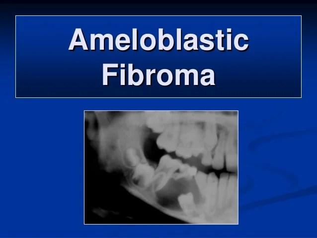 Oral & maxillofacial pathology - odontogenic tumors