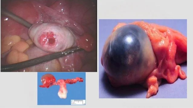 What If Ovarian Cyst Ruptures