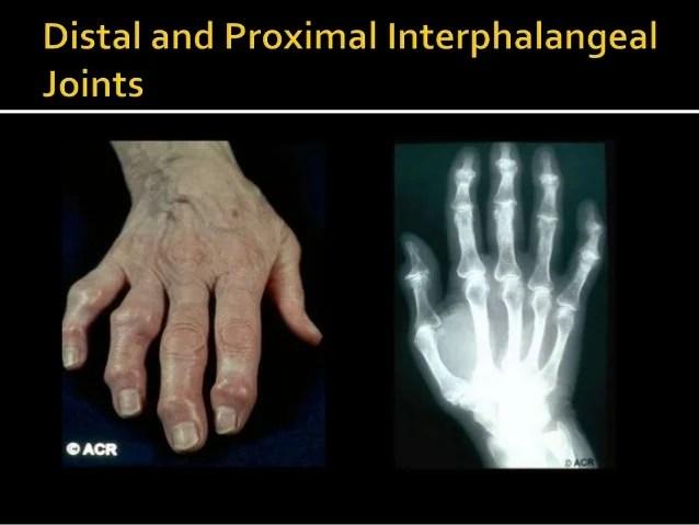 Hand Diabetic Disorders
