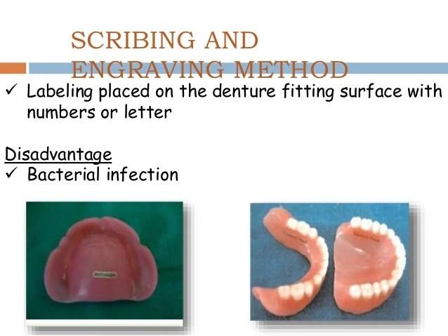 3 Matrix Band Dentistry