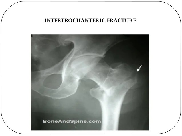 Right Hip Subcapital Fracture