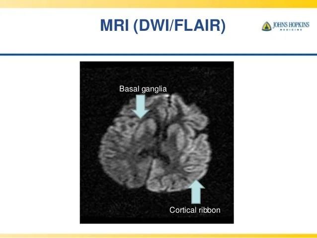 Findings Disease Jakob Creutzfeldt Mri