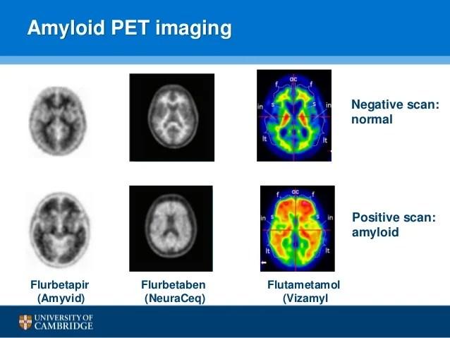 Amyloid Pet Scan Alzheimers