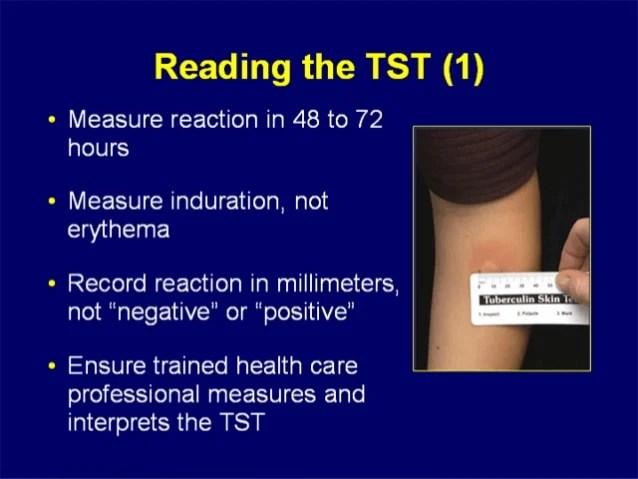 False Positive Tb Skin Test