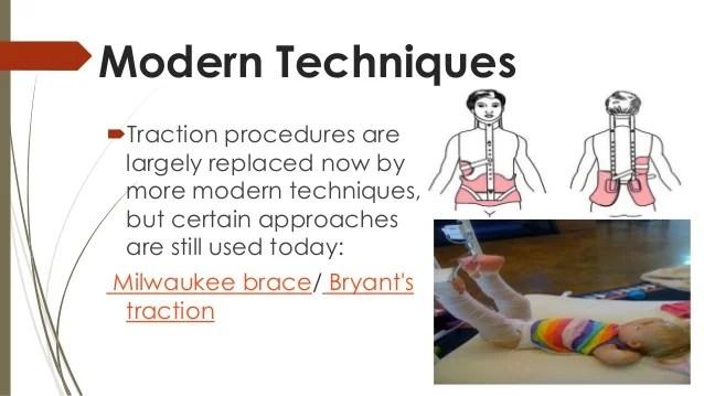 Traction Orthopedics