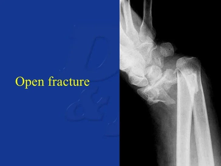 Hairline Fracture Radial Head