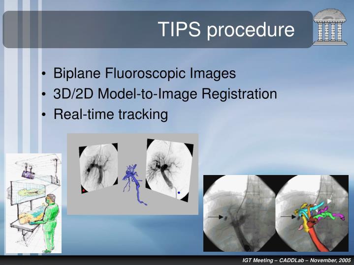 Intrahepatic Shunt Transjugular Ultrasound Portosystemic