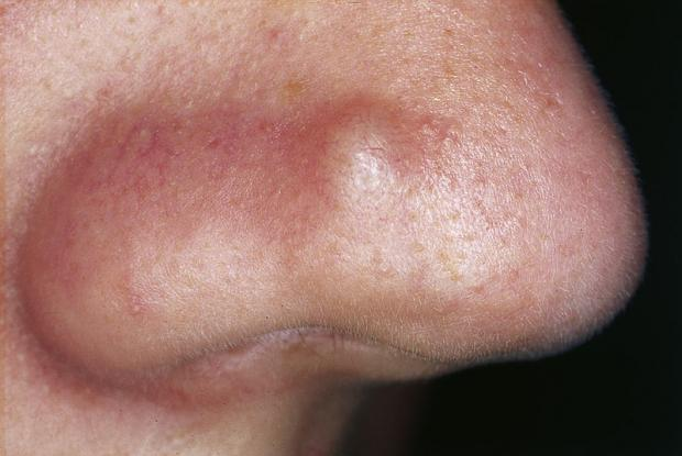 Nose Inside Infection Staph