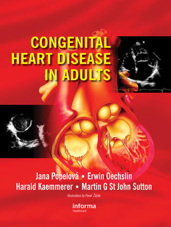 congenital heart disease in adults - 487×648