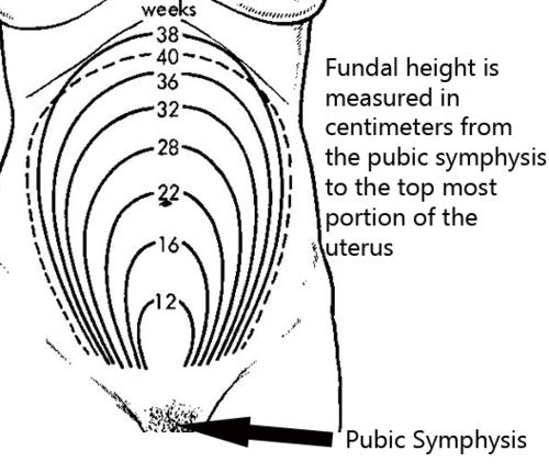 Fundus Fundus Uterine Size