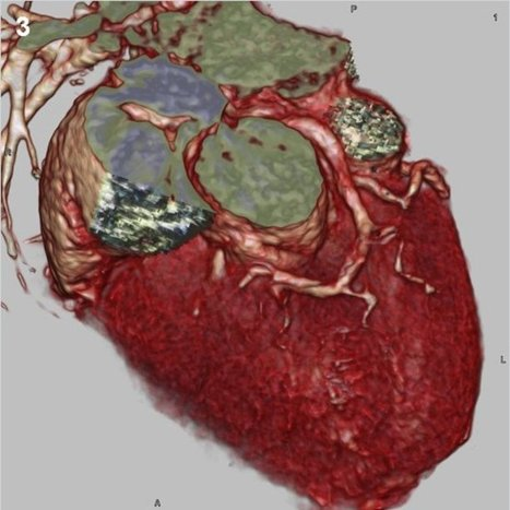 Heart failure develops when the heart via an abnormality of cardiac function detectable or not fails to pump blood at a rate commensurate with the requirements of